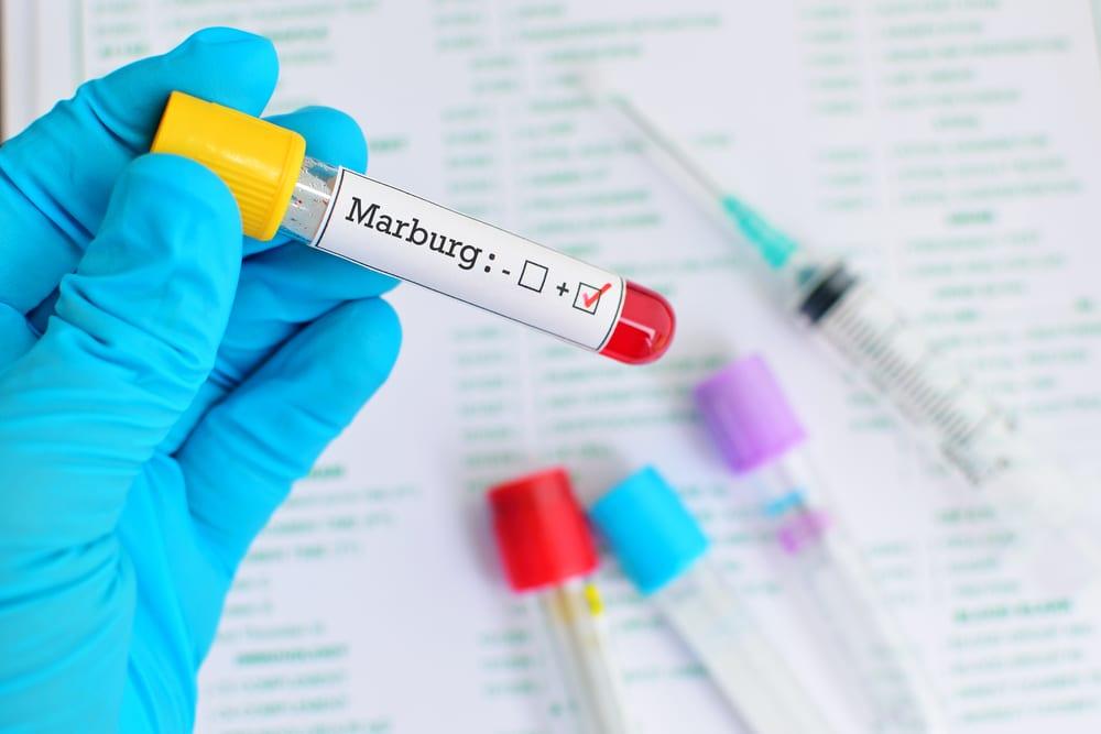 Most Dangerous Viruses - Marburg Virus