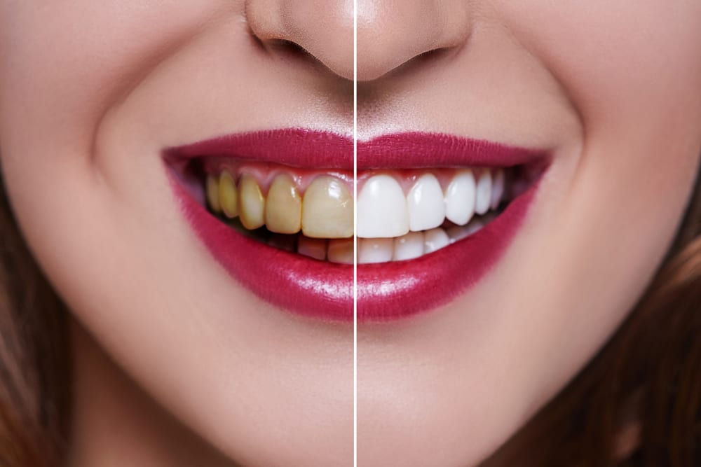 Benefits of Professional Dental Cleanings - Remove Stains