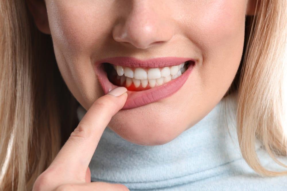 Benefits of Professional Dental Cleanings - Treat Gum Disease