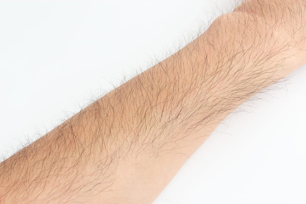 Hair removal techniques and treating baldness